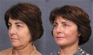 Pan Facial Rejuvenation