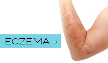 View our range of eczema treatments here